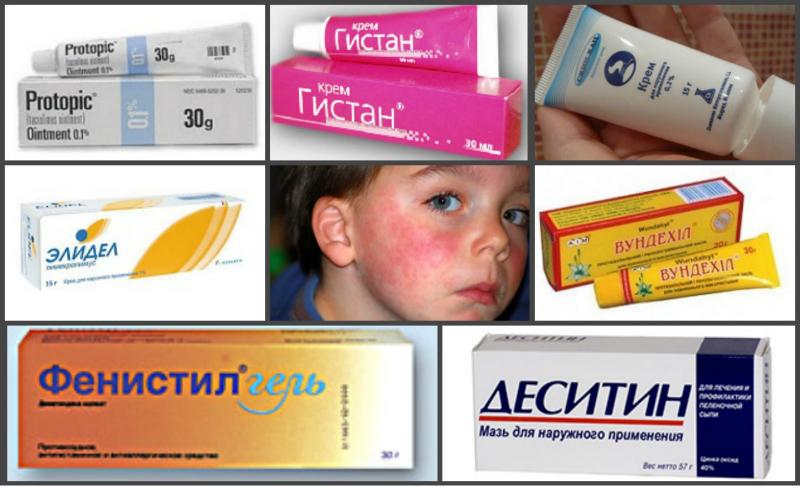 Фенистил при атопическом дерматите отзывы